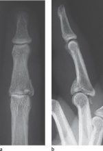 26 Fractures and Dislocations of the Fingers
