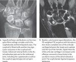 27 Osteoarthritis