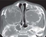 Nasal Cavity: Paranasal Sinuses