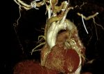 Updates in Vascular Computed Tomography