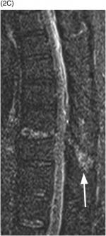 Section 4 – Thoracolumbar Trauma Classification