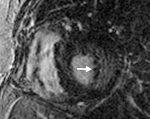 Imaging of Cardiomyopathy and Myocarditis