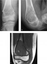 Part 2: Bone Tumors