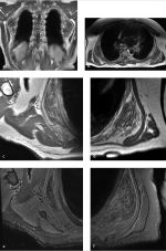 Part 7: Soft Tissue Tumors