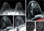 1 Breast MRI: Overview