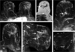 10 Diagnostic MRI: Breast Cancer Applications