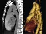 8 Thoracic Aorta and Major Branches