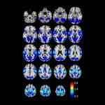 Primary Somatosensory Cortex (Areas 1, 2, 3)
