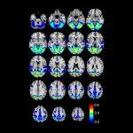 Primary Visual and Visual Association Cortex (Areas 17, 18, 19)