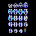 Temporal Cortex (Areas 20, 21, 22)