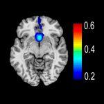 Subgenual Cingulate Cortex (Area 25)