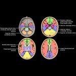 Intracranial Arteries Overview