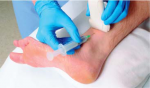 Abnormalities of the Superficial Peroneal Nerve at the Ankle