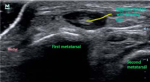 Arthritis and Other Abnormalities of the Metatarsophalangeal and Interphalangeal Joints