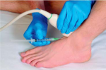 Arthritis and Other Abnormalities of the Ankle Joint