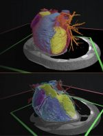 Medical Imaging Technologies and Imaging Considerations for 3D Printed Anatomic Models