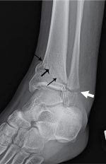 Growing pains: Salter-Harris classification of physeal injuries