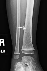 It's tough being a kid: Toddler's fracture