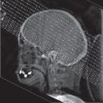 Cranial CT