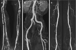 Imaging Approaches and Challenges in the Assessment of Peripheral Artery Disease